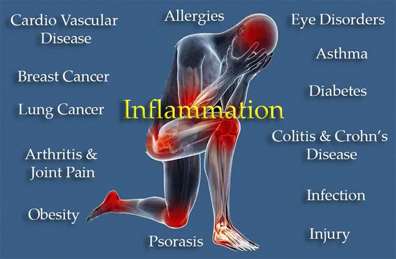 Inflamation Graphic